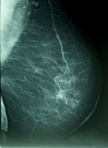 Cancer de mama. Iamgen: WIKIPEDIA  A. AVENDAÑO