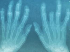 artritis-reumatoide-SINC