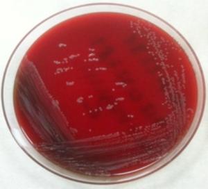 Dermabacter-hominis