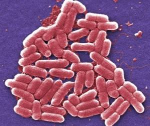 E.-coli